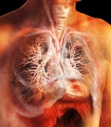 Образование крупного инфильтративно-пневмонического участка
