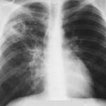 Патоморфология фиброзно-кавернозного туберкулеза