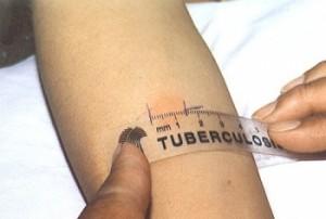 Дифференциальная диагностика деструктивных форм туберкулеза