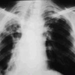 Ошибочный диагноз цирроза легких