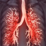 Дифференциальная диагностика плевритов