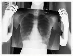 Дифференциальная диагностика при медиастинальных плевральных изменениях