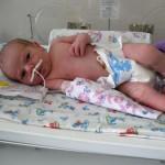 Причины врожденной пневмонии у новорожденных