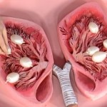 Важность рентгена легких при пневмонии