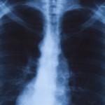 Ряд признаков болезней легких