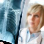 Первые признаки рака легких – когда стоит бить тревогу?