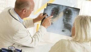 Самые действенные способы определения рака легких