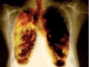 Как можно определить болезнь легких по симптомам