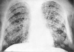 Рентген при остром милиарном туберкулезе легких
