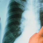 Как проявляется туберкулез легких: особенности течения патологического процесса, симптомы и первые признаки