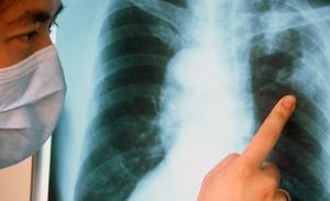 Как проявляется туберкулез легких