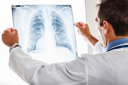 Как правильно диагностировать туберкулез легких у взрослых?