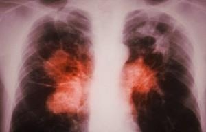 Инкубационный период при туберкулезе легких