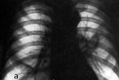 Фото легких пораженных туберкулезом