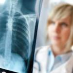 Классификация туберкулеза легких: основные положения
