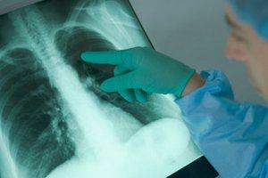 Проведение дифференциальной диагностики саркоидоза легких