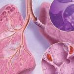 Лечение саркоидоза легких в профильных медицинских учреждениях