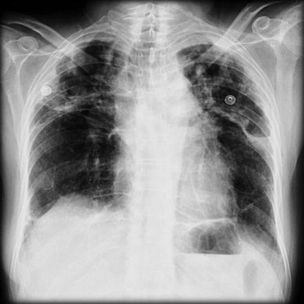 Фото рентгена легких при саркоидозе 4 стадии