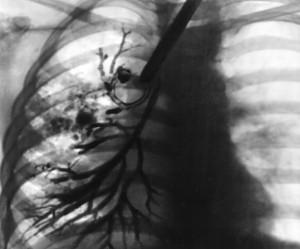 Что такое болезнь муковисцидоз