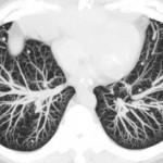 Особенности и преимущества компьютерной томографии легких