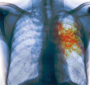 Гибель больного от туберкулеза легких