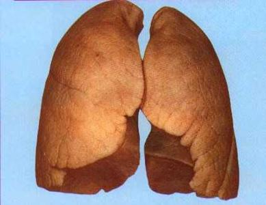 Рентгенологическая картина фиброзно-кавернозного туберкулеза
