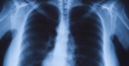 Степень движения диафрагмы при дыхании