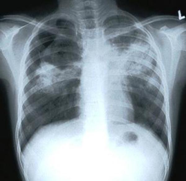 Контур при пневмонических изменениях