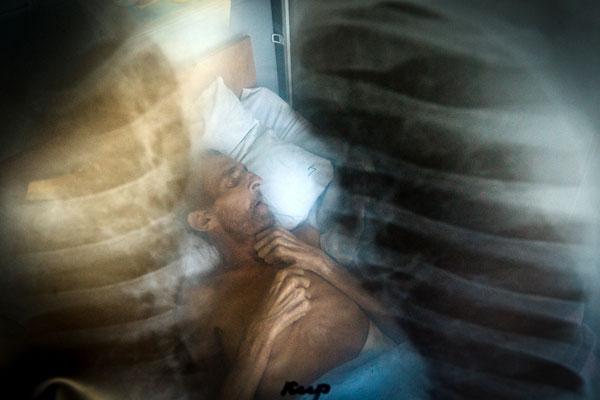 Фото больного туберкулезом легких