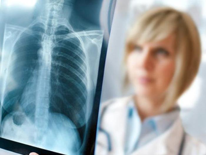 Как классифицируют туберкулез легких